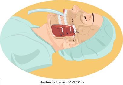 Vector illustration of tracheal  tube anatomy
