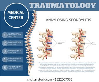 Vector Illustration Traumatology Medical Center. Flat Banner Ankylosing Spondylitis. Specializing Medical Journal for Surgeons. Introductory Colorful Booklet Medical Clinic for Treatment Spine.