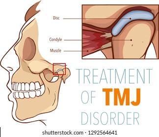 Vector illustration  of treatment of tmj disorder