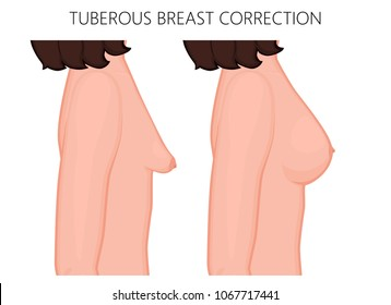 Vector illustration of tuberous breast correction before and after plastic surgery. Side view of the woman breast. For advertising and medical publications. EPS 10.
