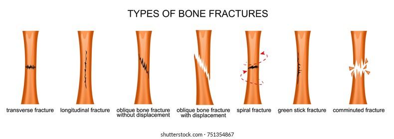 Bone Fracture Images, Stock Photos & Vectors | Shutterstock