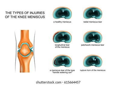 vector illustration of the types of meniscus tear