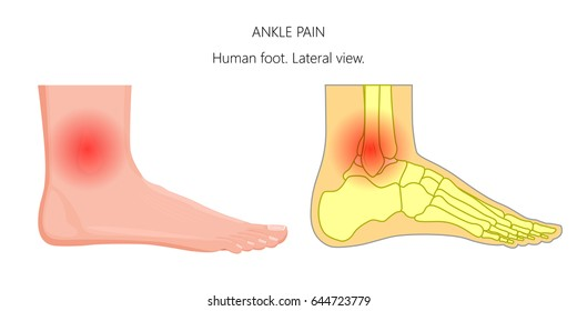 Vector illustration of unhealthy human foot with ankle joint pain or injury. Lateral or side view.  For advertising and other medical publications. EPS 10