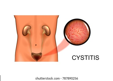 vector illustration of urinary system. bladder, cystitis