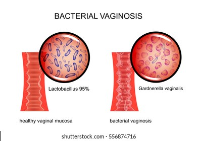 vector illustration of the vagina affected by bacterial vaginosis. for medical publications