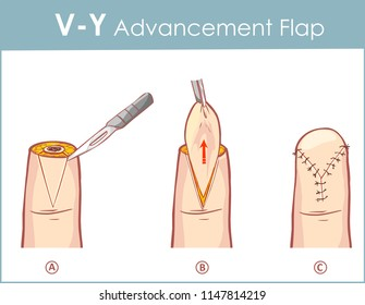 Vector illustration of a V-Y advancement flap