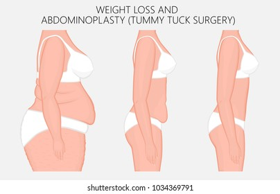 Vector illustration. Weight loss, abdominoplasty, tummy tuck plastic surgery in woman. Side view. For advertising of cosmetic plastic procedures, stomach shunting, diet; medical publications. EPS 8.