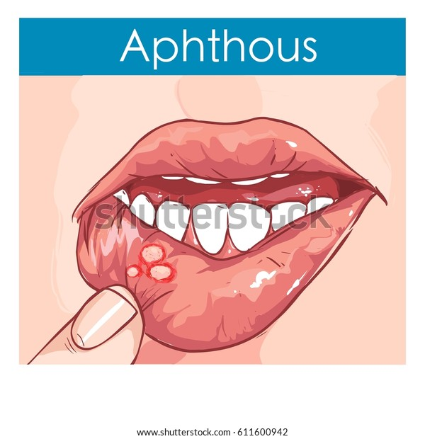 vector illustration of a Woman with aphthae on lip.