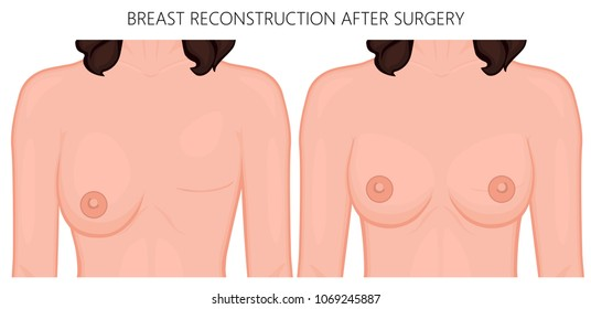 Vector illustration of woman breast reconstruction after surgery. Front view of the woman chest. For advertising and medical publications. EPS 10.