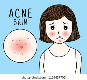 vector illustration woman face acne skin on blue background.