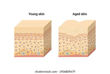 Vector illustration of young and aged skin