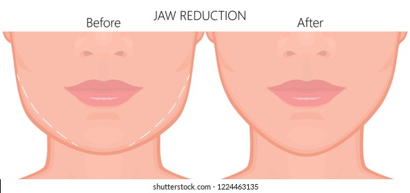 Vector illustration. A young white female face before and after plastic surgery - jaw reduction. Close up view. For advertising of plastic surgery, medical and beauty publications. EPS 10.