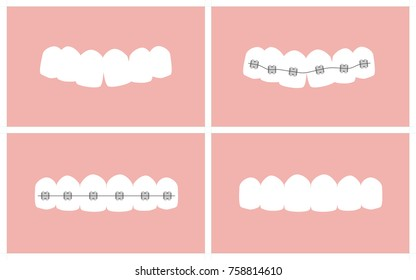 Vector image of the stages of orthodontic treatment (braces on teeth)