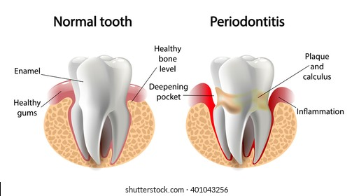 vector image tooth    disease