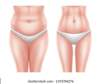 Vector liposuction surgery concept with naked woman body before and after the operation. Fat obese cellulite and overweight and slim belly area, hips after medical transformation for clinic poster ads