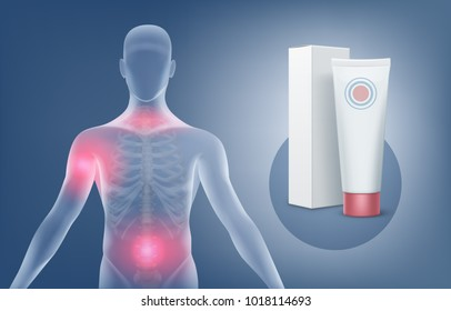 Vector medical illustration of application of the ointment or gel for the treatment of joints pain anatomy arthritis. Tube with packing and silhouette of human body