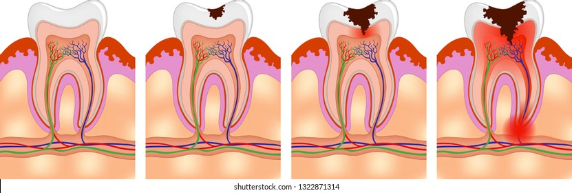 Vector medical illustration of Human tooth decay process.