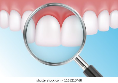 Vector medical illustration of painful teeth with red gums and magnifier on blue background