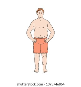 Vector overweight obese unhappy man standing topless in shorts. Fat male character with obesity. Excessive weight man. Health problems connected with weight. Isolated illustration