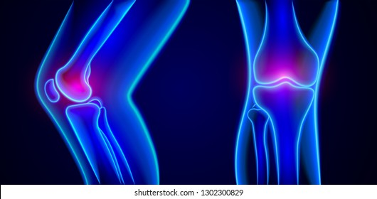 Vector painful knees  x-ray.