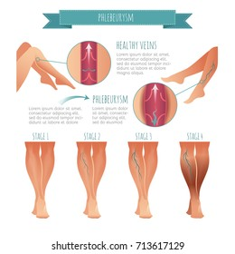 Vector Phlebology infographic. Stage of vein diseases for your design