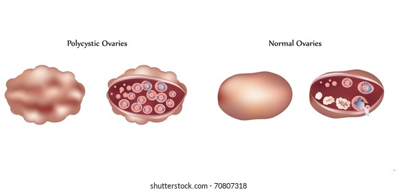 Vector Polycystic ovary and normal ovary differences