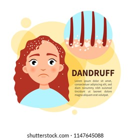 Vector poster. Dandruff. Sad cute girl. Disease of the skin.