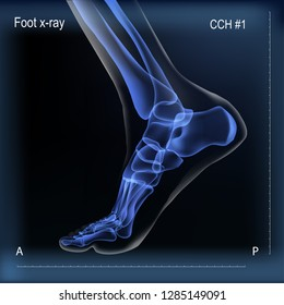 Vector realistic dark navy blue x ray of skeleton of foot. Human leg bones. Anatomy of joints. Medial view. For advertising or medical publications. Illustration stock vector.