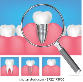 Vector realistic healthy teeth with magnifying glass showing tooth in gums with roots visible