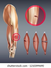 Vector realistic illustration of leg muscle injury with rupture at different stages, ruptured tendon isolated on background