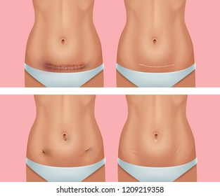 Vector realistic set of fresh and healed scars on the female body in the abdomen, surgical sutures from abdominal surgery and laparoscopy, isolated on background
