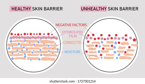 vector scientific horizontal poster of skin structure, cells building. Comparison of healthy and damaged skin barrier hydrolipid film. Anatomy reason acne prone epidermis, phospholipid bilayer scheme