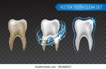 Vector set of 3d realistic clean and dirty tooth isolated on transparent background, clearing tooth process. Teeth Whitening. Dental health Concept. Oral Care, teeth restoration