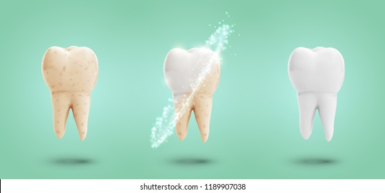 vector set of three molars. tooth cleaning, care and protection from tooth decay.