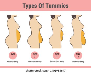 Vector of Types Of Tummies for woman
