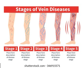 Vector Varicose infographic. Stage of vein diseases. Medical infographic.