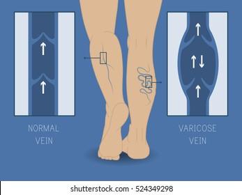 Vector varicose vein and normal vein. Slender and beautiful female legs. Varicose vein.