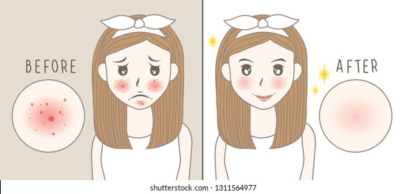 vector woman face. acne before and after. skin care illustration.