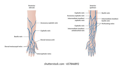 Vein plotting in the arm  illustration vector on white background. Medical concept.