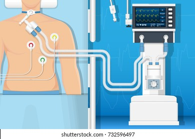 Ventilator Medical Machine Equipment for Tracheostomy Patient Breathing in Operating Room Surgery Hospital Clinical ICU Intensive Care Unit