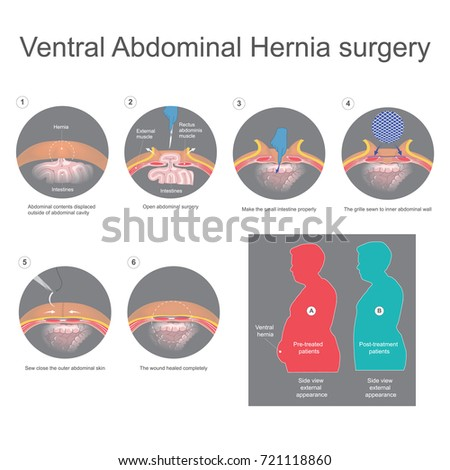 Ventral Hernia Bulge Tissues Through Opening Stock-Vektorgrafik ...