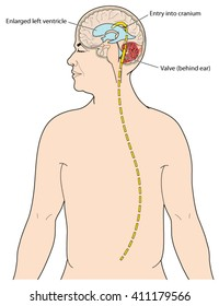Ventriculoperitoneal shunt to drain excess CSF from the brain in cases of hydrocephalus