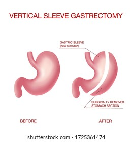 Vertical Sleeve Gastrectomy medical vector illustration diagram with stomach surgical cut.  Bariatric surgery with a reduction of the size of the stomach for weight loss and loss of body weight.