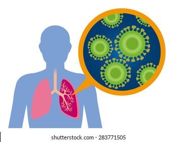 Virus disease image illustration