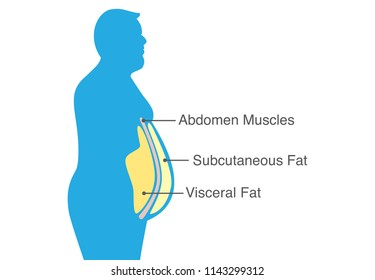 Visceral fat and subcutaneous fat that accumulate around your waistline. Illustration about medical diagram.
