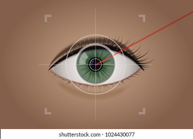 Vision correction by a laser beam. Ophthalmologist vector illustration. Green the human eye. Medical clinic.