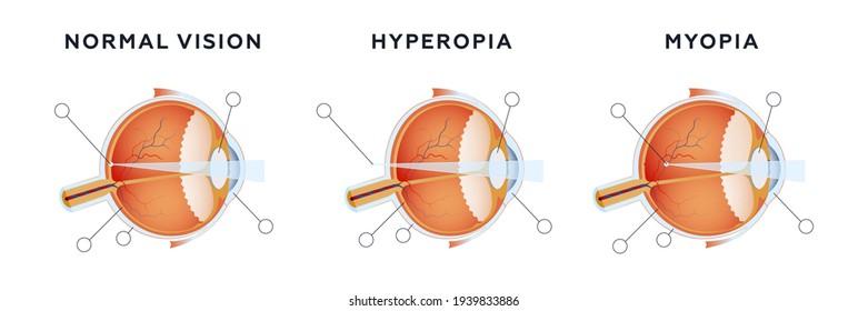 hyperopia és myopia megkülönböztetés)