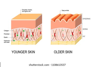Visual representation of skin changes over a lifetime. Collagen and elastin form the structure of the dermis making it tight and plump. Fibroblasts synthesize collagen and elastin