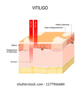 Vitiligo. Is a skin condition characterized by portions of the skin losing their pigment. It occurs when skin pigment cells (melanocytes) die or are unable to function. Vector diagram for medical use