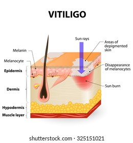 Vitiligo. Is a skin condition characterized by portions of the skin losing their pigment. It occurs when skin pigment cells (melanocytes) die or are unable to function.